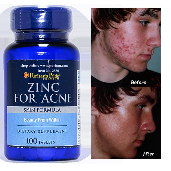 Zinc For Acne Puritan's Pride 100 Tablets ลดความมันบนใบหน้า ลดสิวอักเสบ สิวอุดตัน ป้องกันการเกิดสิว ลดรอยแผลจากสิว
